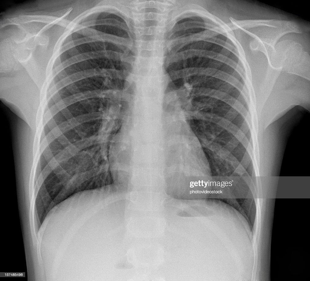 Pneumonia Xray High-res Stock Photo