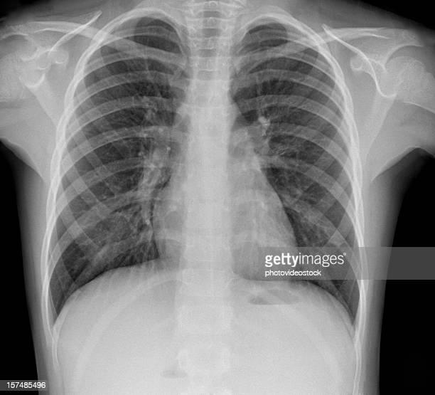 pneumonia x-ray - mycobacterium tuberculosis bacteria stock photos and pictures