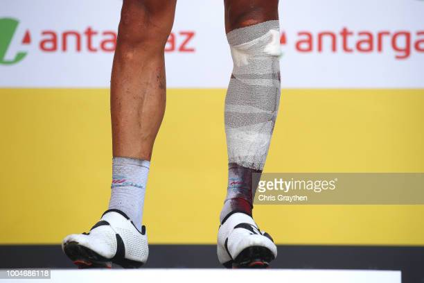 Podium / Philippe Gilbert of Belgium and Team Quick-Step Floors Most combative rider / Celebration / Injury / Legs / during the 105th Tour de France...