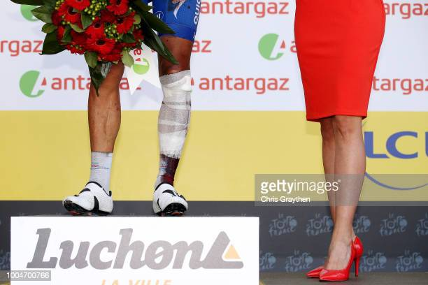 Podium / Philippe Gilbert of Belgium and Team QuickStep Floors Most combative rider / Celebration / Injury / Legs / Detail view / during the 105th...
