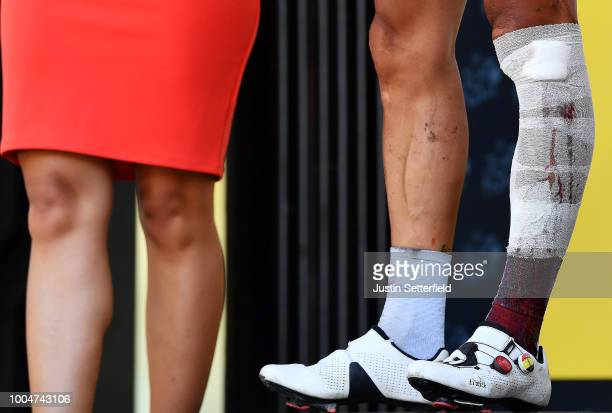 Podium / Philippe Gilbert of Belgium and Team Quick-Step Floors Most combative rider / Injury / Legs / Detail view / during the 105th Tour de France...