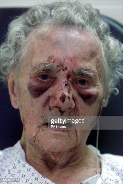 Police in London have released this photograph showing the shocking injuries inflicted on 95yearold Doris Marr from East Ham east London who was...