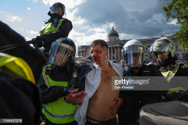 Police lead an injured man away after clashes between protesters in Trafalgar Square on June 13 2020 in London United Kingdom Following a social...