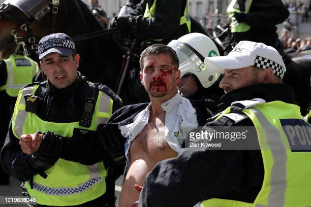 Police lead an injured man away who was allegedly part of the right-wing element of the protest, as clashes with protesters take place near the...