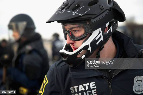 Police officer is bloodied after a clash with demonstrators before the start of a speech by white nationalist Richard Spencer, who popularized the...
