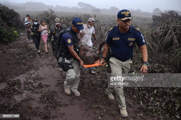 TOPSHOT Police officers carry a wounded man after the eruption of the Fuego Volcano in El Rodeo village Escuintla department 35 km south of Guatemala...
