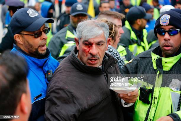 Police rescue a protester during clashes between demonstrators against the American Israel Public Affairs Committee and its supporters in Washington...
