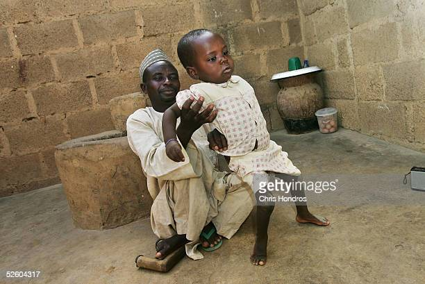 Polio sufferer Aminu Ahmed holds his son Umar who also suffers from polio April 8 2005 in Kano Nigeria Polio a disease that health workers once had...