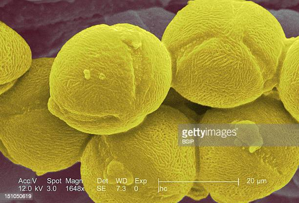 Pollen Of Evening Primrose From The Species Oenothera Fruticosa Variety 'Fireworks' Colorized Sem X 1648 The Line Corresponds To 20 Microns This...