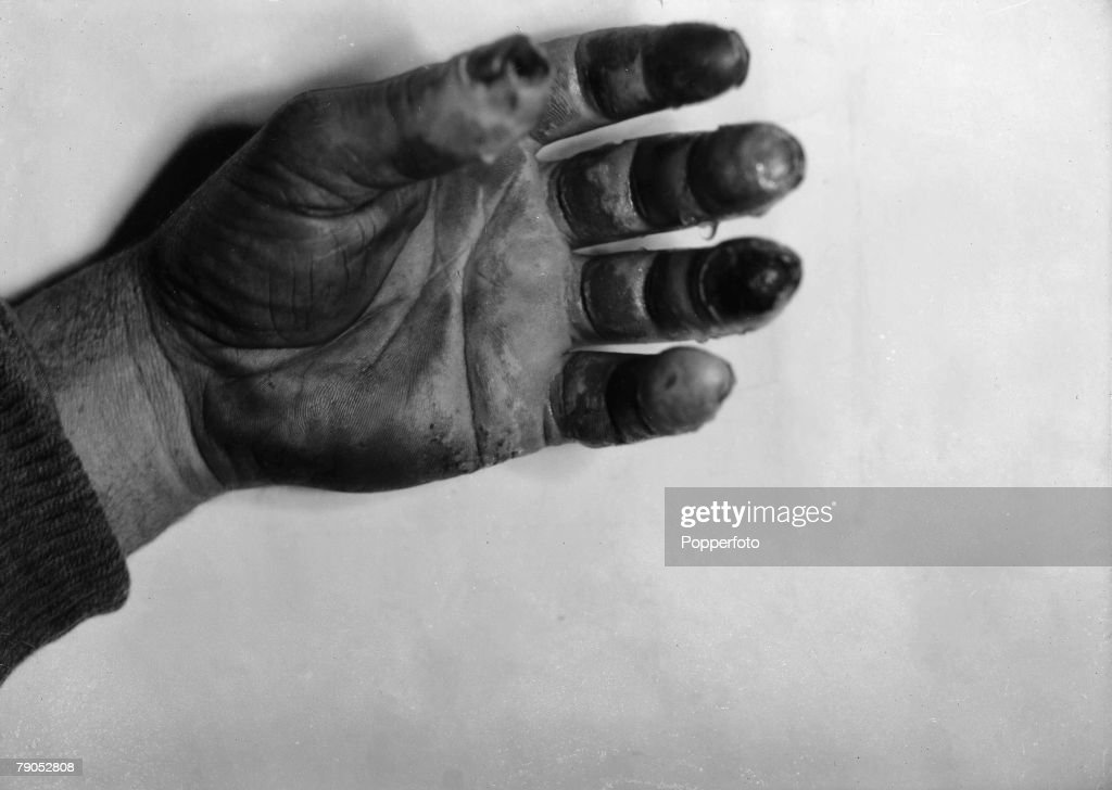 H.G Ponting. Captain Scott+s Antarctic Expedition 1910 - 1912. 5th July, 1911. A close up showing the frostbitten hand of Dr. Atkinson. : News Photo