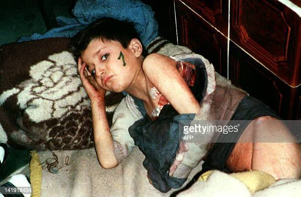 A poorly nourished and wounded Bosnian child lies on a makeshift hospital bed waiting for his evacuation from Srebrenica in this picture taken in...