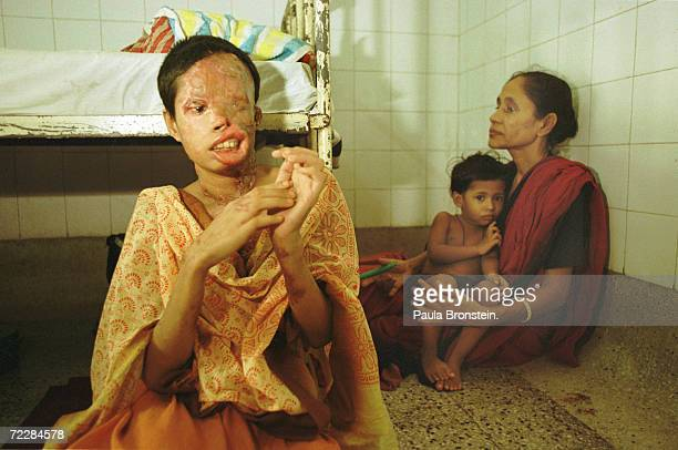 Popi a 22 yearold Bangladeshi woman sits in a hospital in Dhaka Bangladesh after she was attacked with battery acid while on a rickshaw Popi was...
