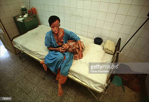 Popi a 22 yearold Bangladeshi woman who suffered severe burns from a battery acid attack sits with her son Akhi age 2 in a hospital July 2000 in...