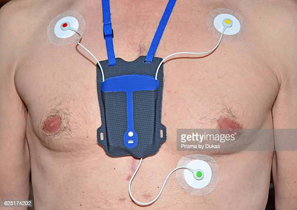 A portable heart monitor with colour coded electrode pads Worn by a man who has had open heart surgery as seen from the scar tissue and tube holes on...