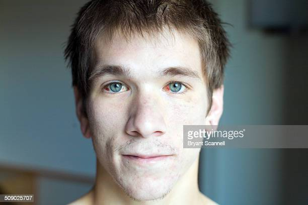 portait of man after car accident - bloodshot stock pictures, royalty-free photos & images