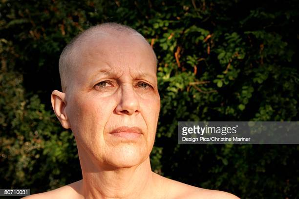Portrait of a breast cancer survivor