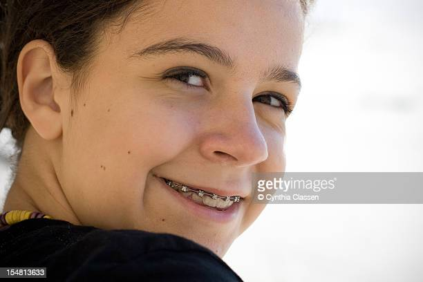 Portrait of a Girl (12) with Teeth Braces
