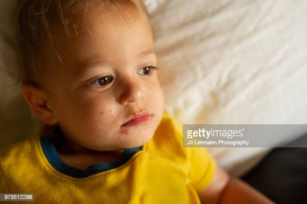 portrait of a male toddler experiencing hand mouth and foot disease - male feet on face stock photos and pictures