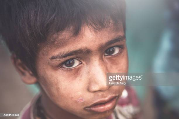 a portrait of a poor child from india - underweight stock photos and pictures