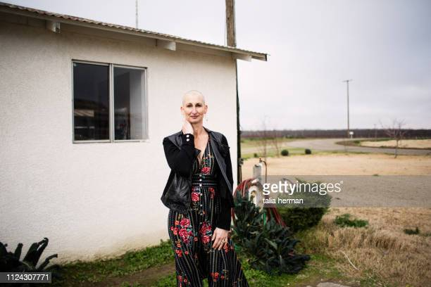 portrait of a woman with alopecia in a dress - vulnerability stock pictures, royalty-free photos & images