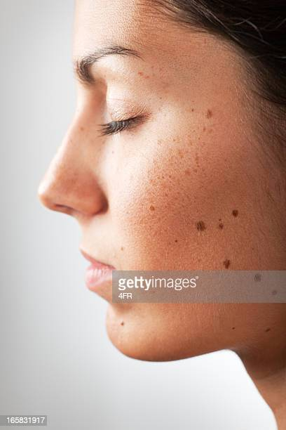 Portrait of a Woman with Melanoma Moles and Freckles (XXXL)