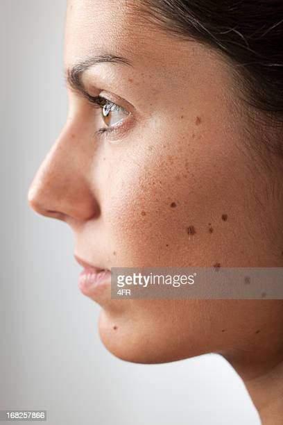 portrait of a woman with melanoma moles and freckles (xxxl) - melanoom stockfoto's en -beelden