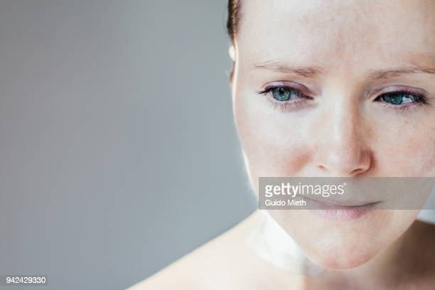 Portrait of a woman with scar .