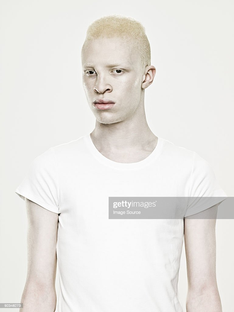 Handsome Albino Man