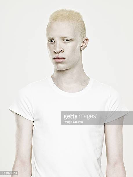 Portrait of a young albino man