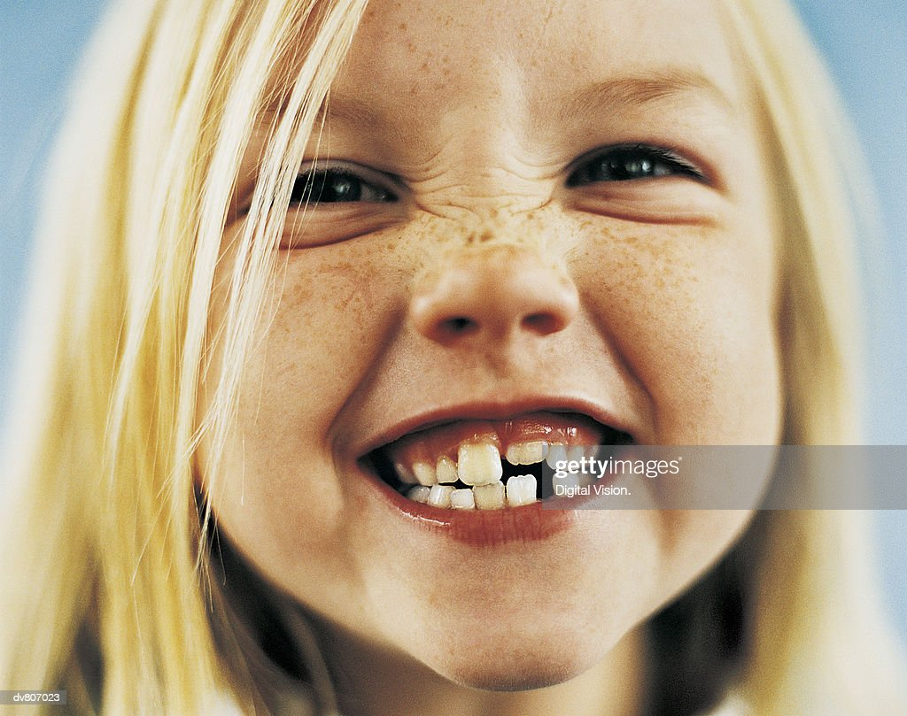 Portrait of a Young Girl With Gappy Teeth and Blond Hair : Stock Photo