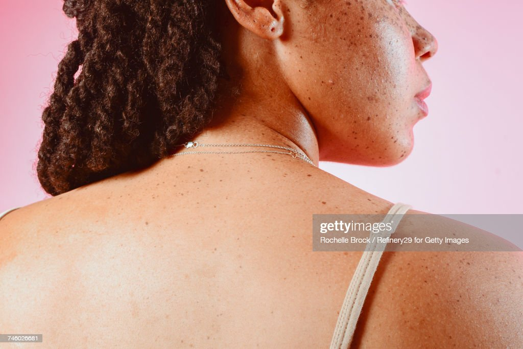 Portrait of a Young Womans Back with Freckles : Foto de stock