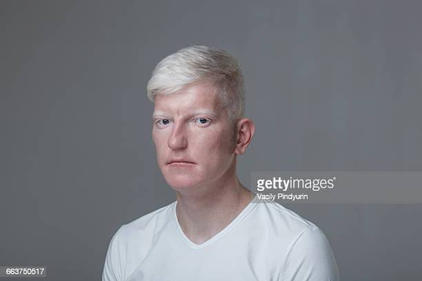 Portrait of albino man against gray background