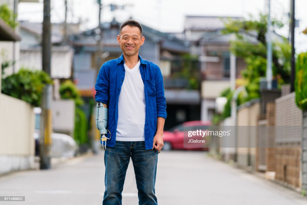 Portrait of an amputee mid adult man stood outdoors : Stock Photo