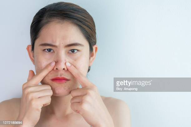 portrait of asian woman pointing acne and aging scar problem occur on her face. - abszess stock-fotos und bilder