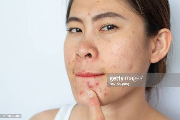portrait of asian woman with problems of acne inflammation (papule and pustule) and scar occur on her face. - abszess stock-fotos und bilder