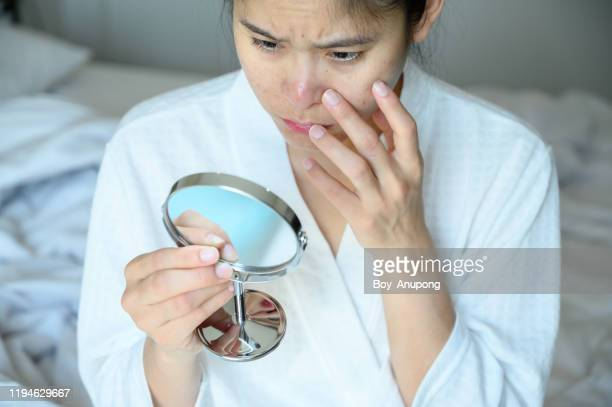 portrait of asian woman worry about her face when she saw the problem of acne and scar by the mini mirror. - damaged stock pictures, royalty-free photos & images