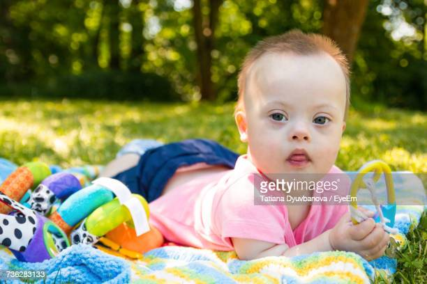 Portrait Of Baby With Down Syndrome Lying In Grass