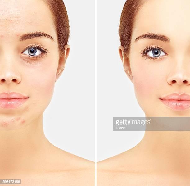 Porträt der schönen Frau mit klare Haut und problem