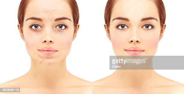 Portrait of beautiful woman with problem and clear skin