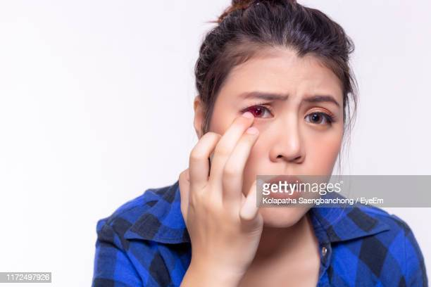 portrait of beautiful young woman checking eyes against white background - maladie infectieuse photos et images de collection