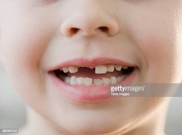 Portrait of boy with missing teeth