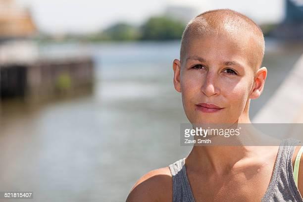 Portrait of calm young female cancer survivor