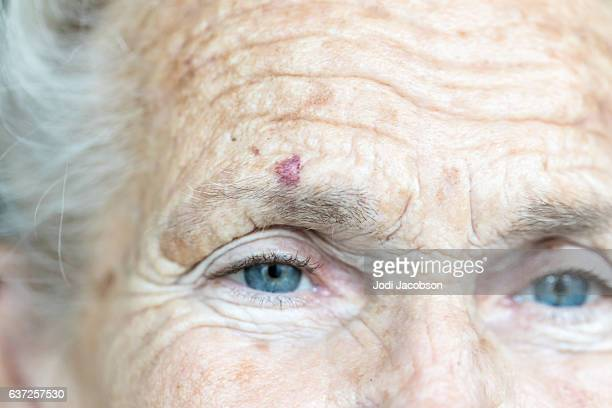 Portrait of caucasian senior woman with cut over her eye