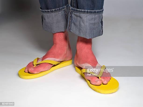 Portrait of feet with sunburn