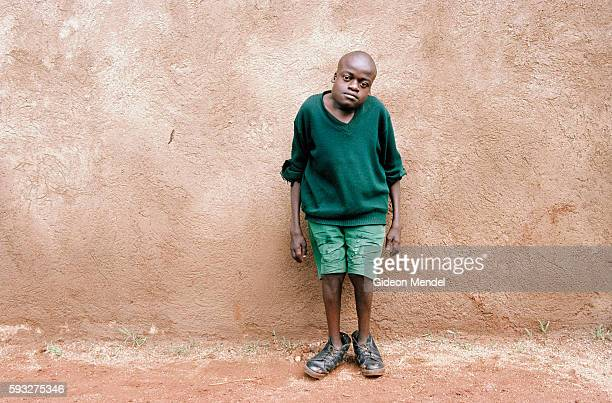 Portrait of fifteenyearold Guston Opar who was born with severe deformities of the spine and feet and was kept hidden by his family for much of his...