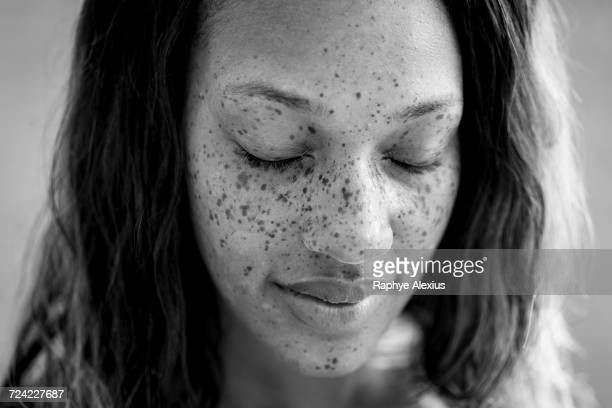 Portrait of freckled woman with eyes closed