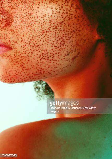 Portrait of Freckles on a Young Girls Face