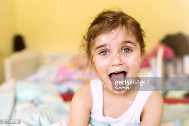 portrait of girl with chickenpox at home - catapora imagens e fotografias de stock
