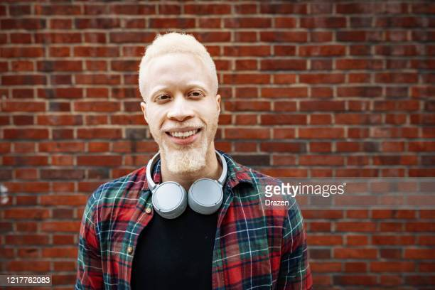 portrait of handsome albino african man - albino stock pictures, royalty-free photos & images