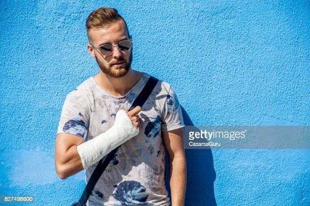 腕の骨折でハンサムな若い男の肖像 - 骨折 ストックフォトと画像